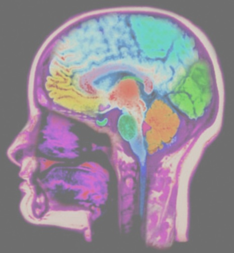 MRI showing effect of violent video games on the brain