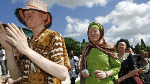 Participants march towards Mnazi Mmoja grounds during Tanzania Albino Day celebrations in Dar es Salaam.  Photo Credit: Voice of America